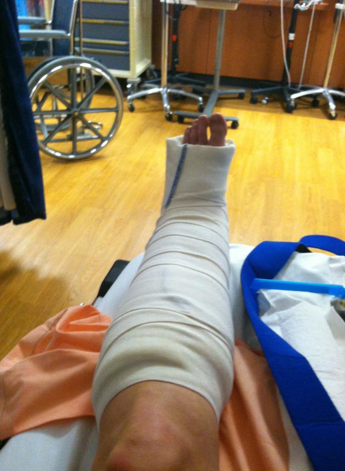Carolyn Broken Leg