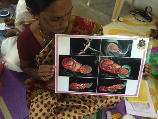 A nurse holds up an illustrated chart that uses Nucleus content to depict childbirth.