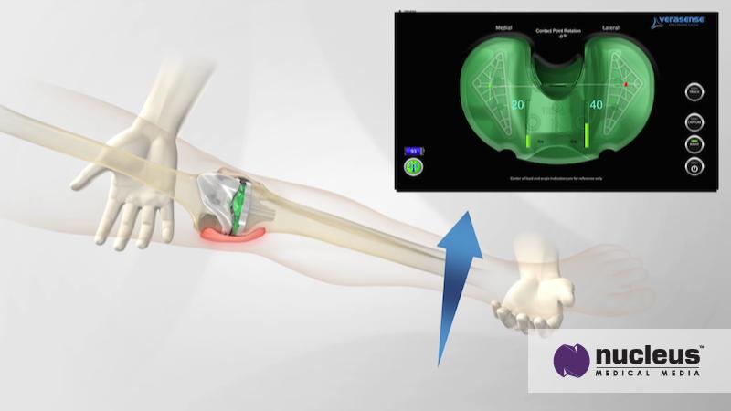 OrthoSensor-animation
