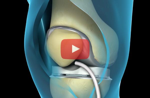 knee-surgery-still